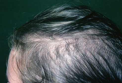 myths and facts on womans hair loss