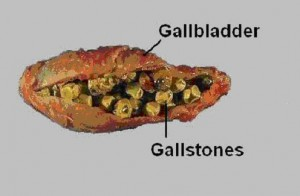 gallbladder and the issue of gallstones, Human Body